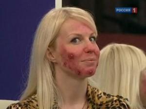 Болезнь, которая может изуродовать лицо