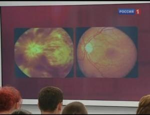 Чем опасен глазной инсульт?
