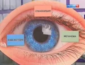 Цвет глаз и здоровье