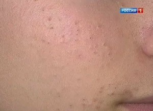 крем от черных точек на лице