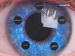 Мушки в глазах