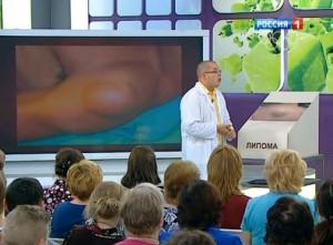Переходят ли жировики в рак