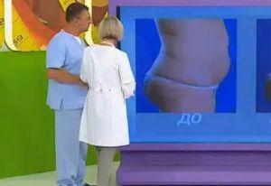 Помогает ли похудеть липосакция