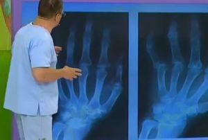 Чем опасен ревматоидный артрит