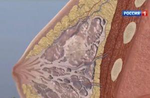 Рак груди – симптомы