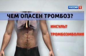 Тромбоз – симптомы и лечение