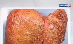 фото жировой гепатоз печени