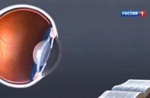 Дистрофия сетчатки глаза – лечение