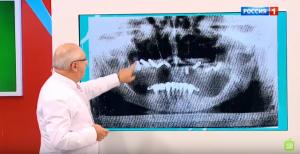 Что делать, если боишься идти к стоматологу лечить зубы? фото