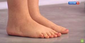 Плоскостопие у взрослых - лечение в домашних условиях фото